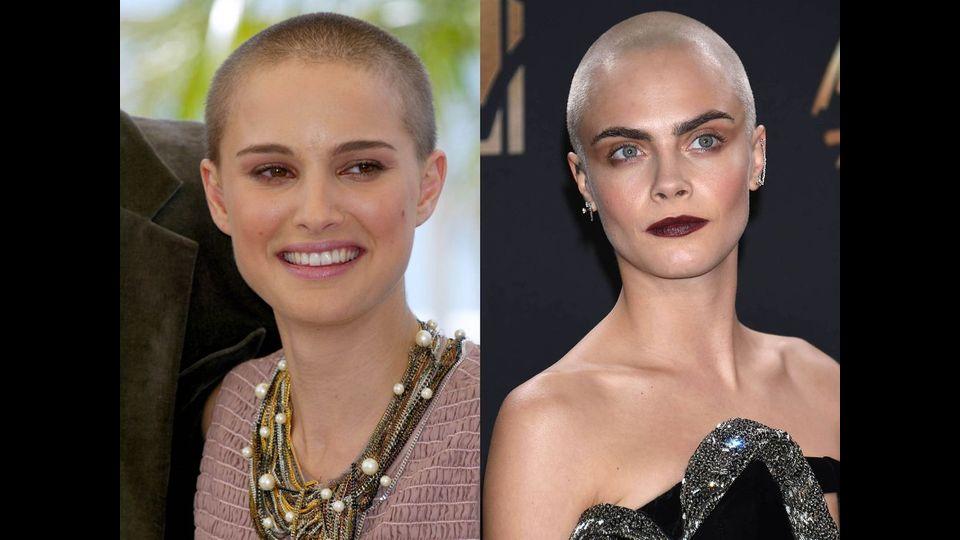 Glatze keine wem steht Dank Glatzen